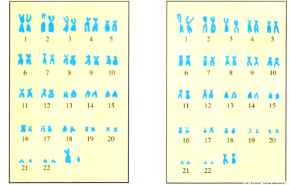 观察图三肾单位结构示意图所示.回答问题
